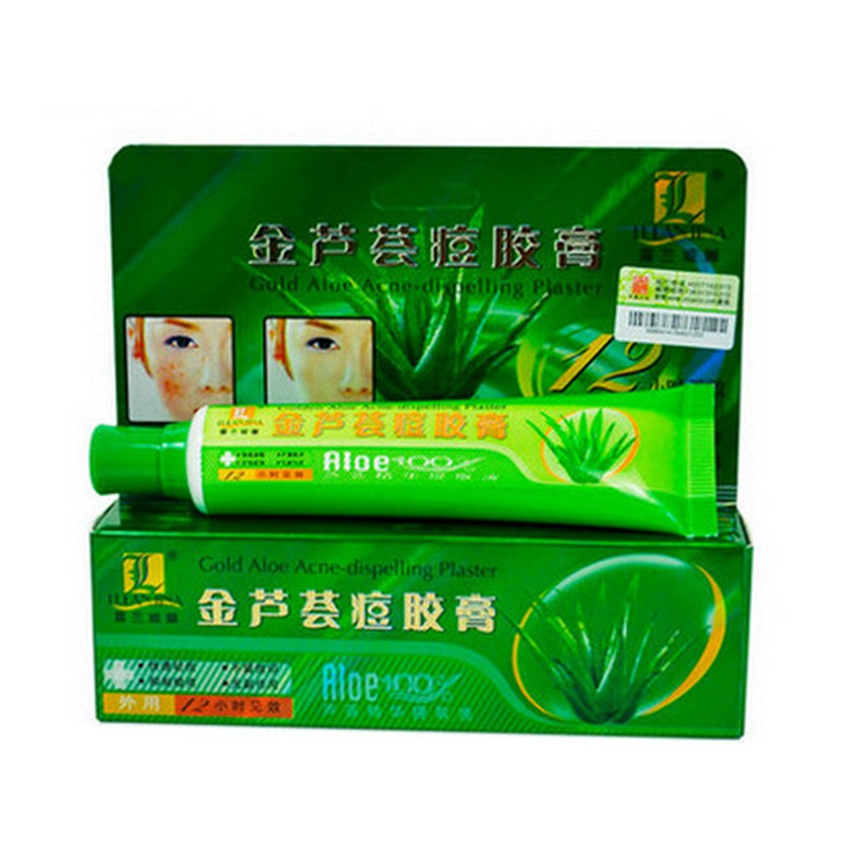 ROLANJONA Aloe Acne Scar Removal Cream Anti-acne Ointment Anti Dark Sore Plaster